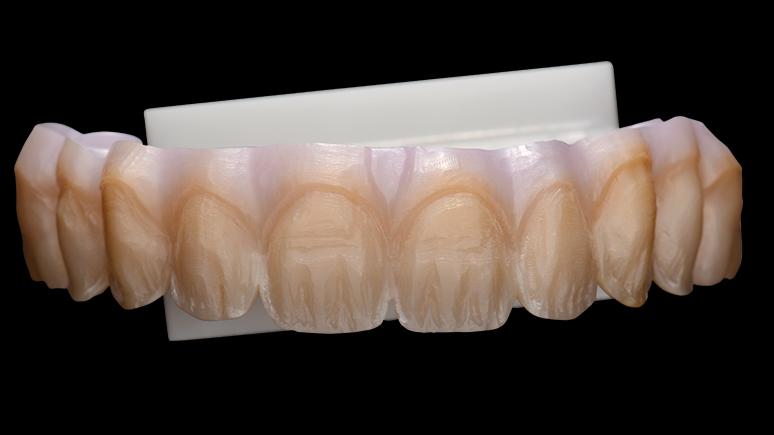 des prothesistes dentaires Association française de prothésistes dentaires l'association vitallium france créée le 22 novembre 1985, héritière du regroupement des meilleurs laboratoires français réunis en association pour partager et améliorer leurs connaissances prothétiques.