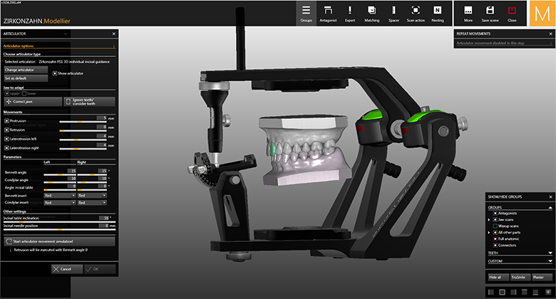 Software Module Cad Cam Virtual Articulator